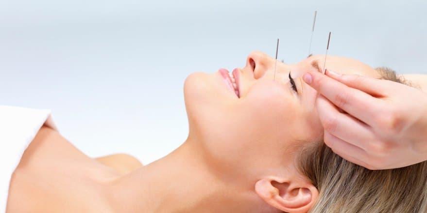 acupuntura estetica - Derma Visión